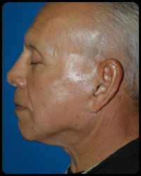 Face and Neck Surgery