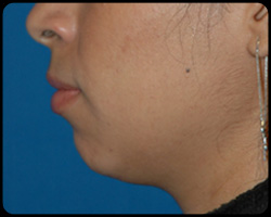 Chin Surgery - Genioplasty