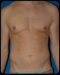 Liposuction and Body Contouring - Suction Assisted Lipectomy (SAL)
