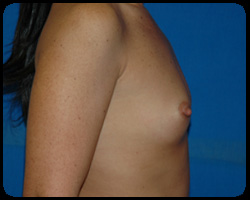 Breast Surgery - Mammoplasty and Mastoplasty