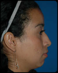 Nasal Surgery - Rhinoplasty